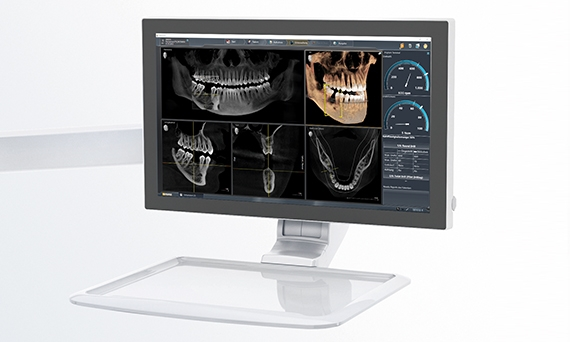 Display of dental unit plugin on the Sivision monitor of a treatment center