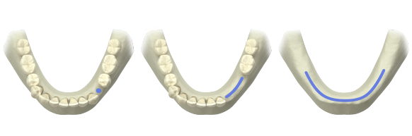 Atlantis patient-specific abutments