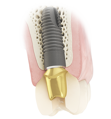 Atlantis Screw-retained solutions