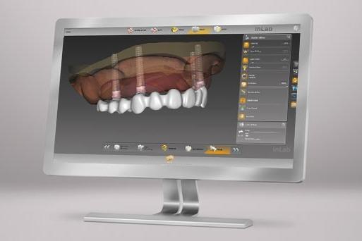 Dental Lab デンツプライシロナ